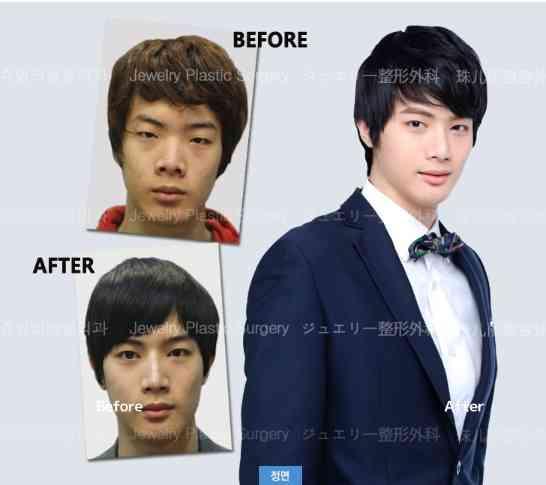 韓国美容整形関係者「日本男性の顔は救いようがないのに整形しない。アジアから取り残されて可哀想」