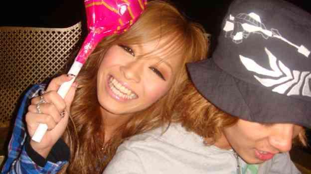 小森純、スナック菓子を食べて歯がかける「歯だけは綺麗って褒め続けられて生きてきただけに相当ショック」
