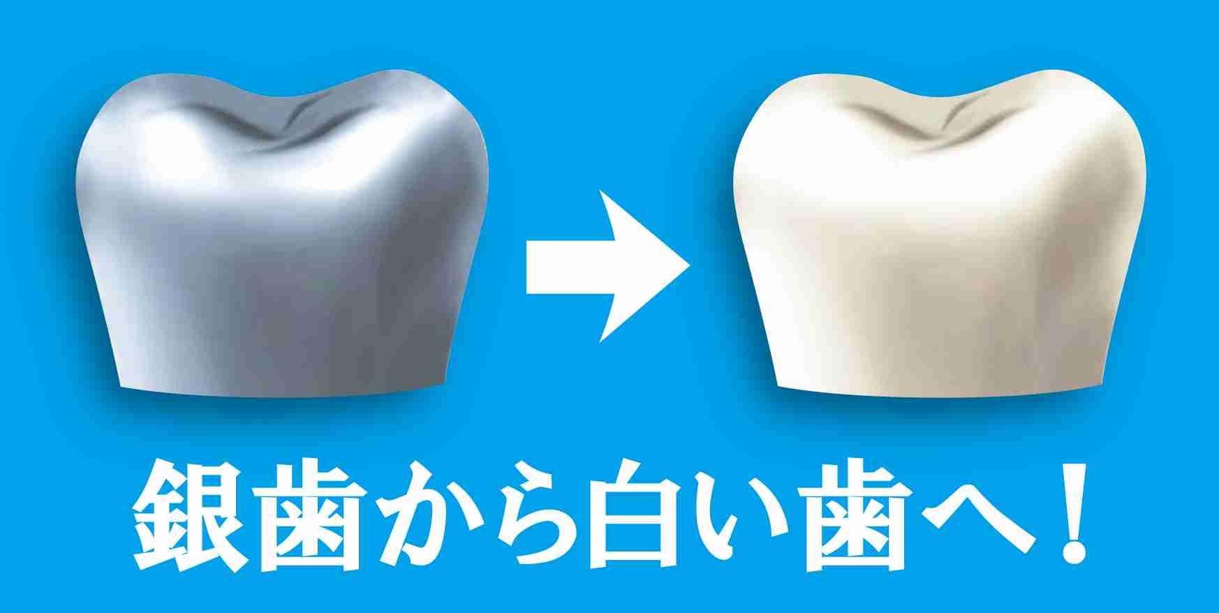 銀歯ある子のことどう思いますか?