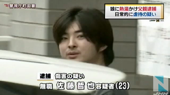 【東京】生後8ヶ月長女の顔に熱湯…父親を傷害容疑で逮捕
