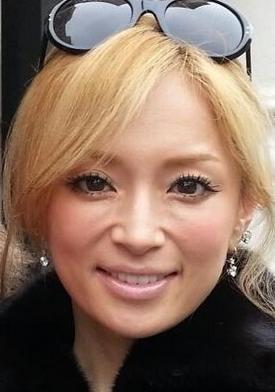 顔面パンパン、頬の上の横シワ…深田恭子に
