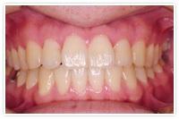 歯科矯正の経験がある方、いますか?