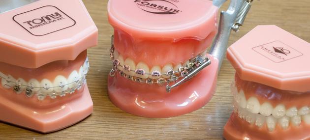 大人になって歯科矯正した方、しようと考えている方☆