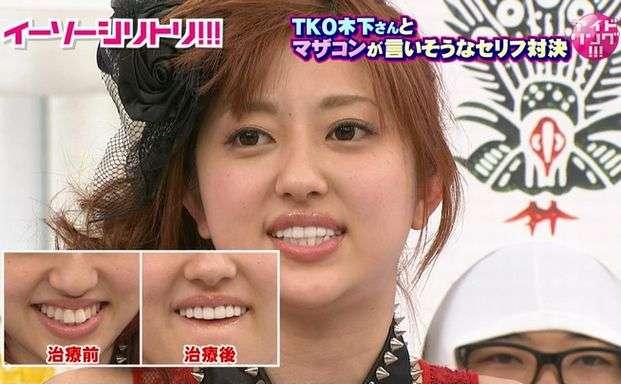 菊地亜美が『ごきげんよう』で「失言」をして話題に