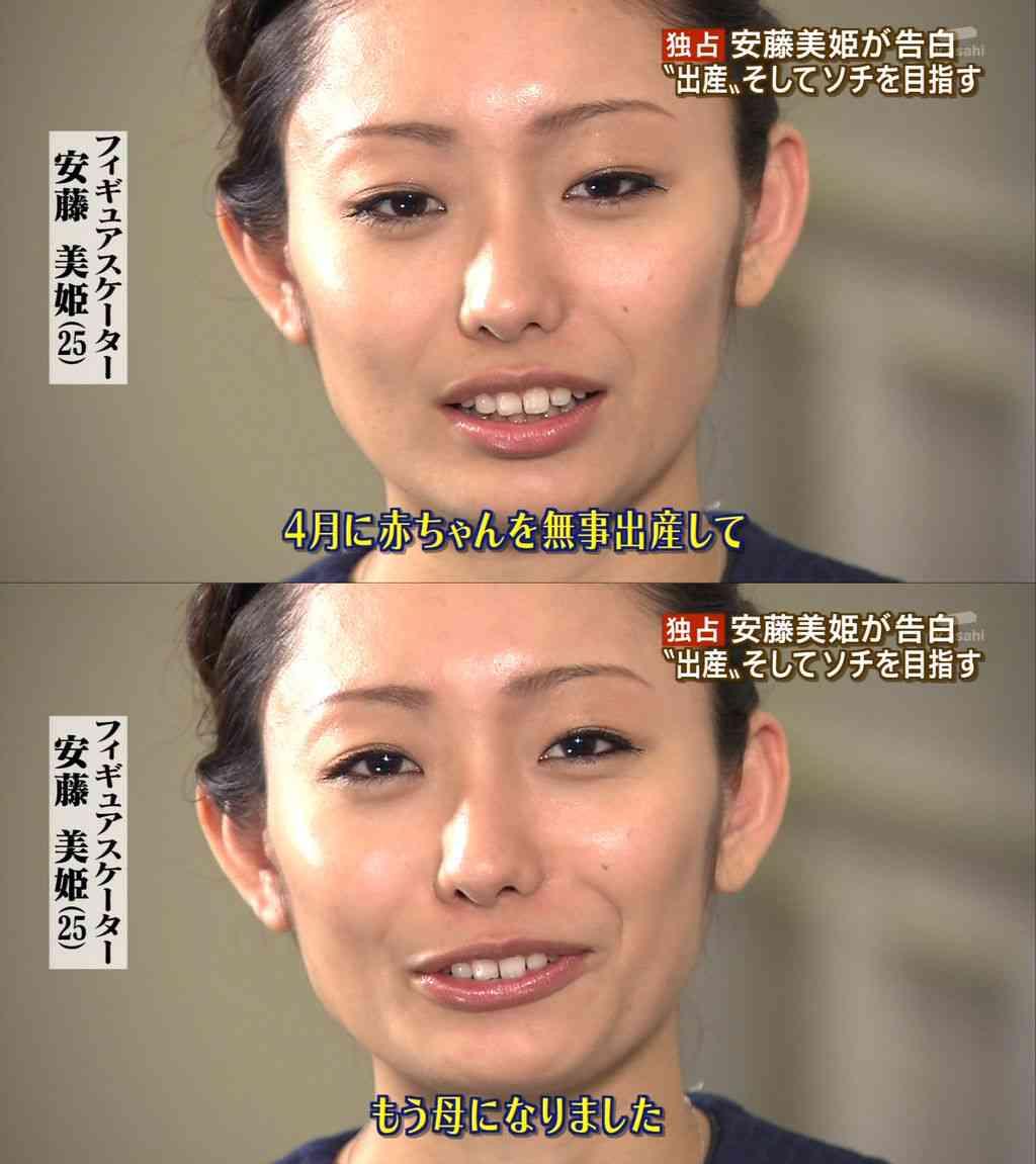 着やせ衣装でも隠し切れない!?安藤美姫「激太り」疑惑と漏れ伝わる「悪評」