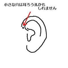 徳澤直子の3歳長女 耳漏孔で手術へ