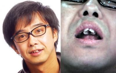 歯並びが悪い人