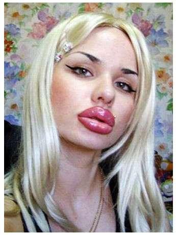 ジェシカ・ラビットに憧れて、唇整形にハマった女性   ロケットニュース24