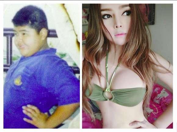 【タイの本気】色黒ポッチャリおデブの少年がタイで手術したらこうなった | ロケットニュース24