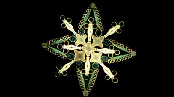 """顕微鏡で見た """"藻""""がすごいことに…!"""