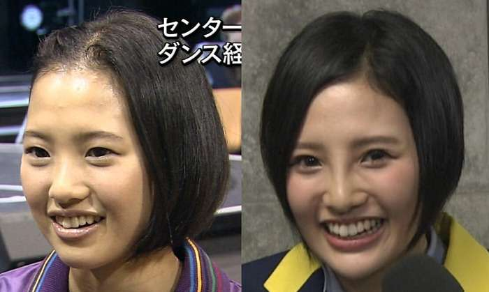 Kodama Haruka before and after the surgery