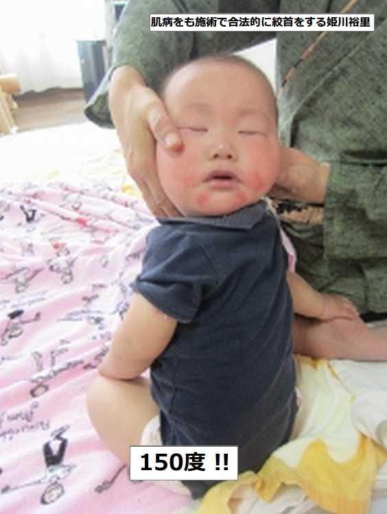 首ひねる独自マッサージ後乳児死亡でNPO代表任意聴取…昨年に続き2件目