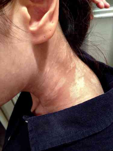 カネボウ化粧品子会社が会議資料で白斑被害者を「地雷原」と表現