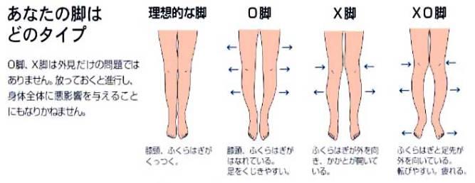 X脚について。