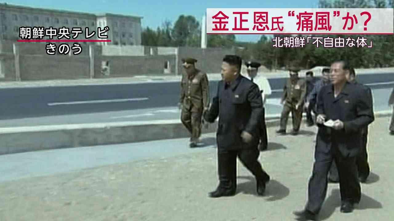 朝鮮中央テレビ、金正恩第1書記の健康問題示唆 痛風か(14/09/26) - YouTube