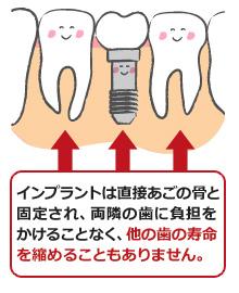 災難続きの後藤真希…今度は前歯が欠けて困った!