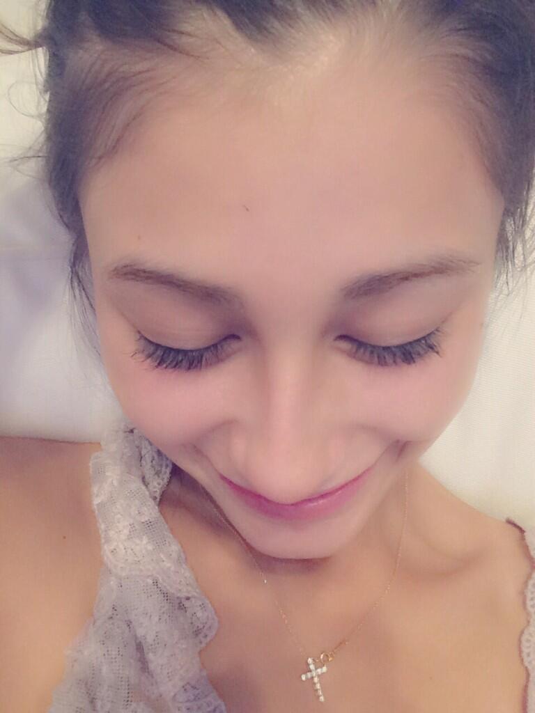 ダレノガレ明美、韓国の女性に憧れおでこ脱毛にハマる