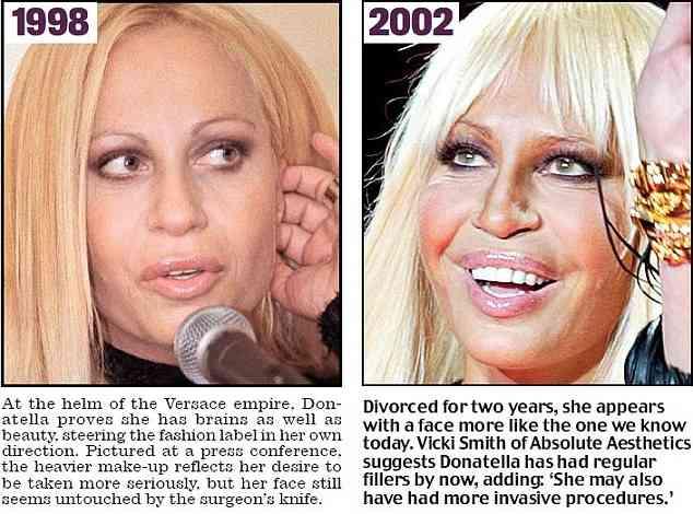 【閲覧注意】ボトックス注射の功罪!? 20年近く美容手術を繰り返してきた著名デザイナーの顔写真に衝撃走る