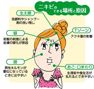 ニキビにお悩みの方(T_T)