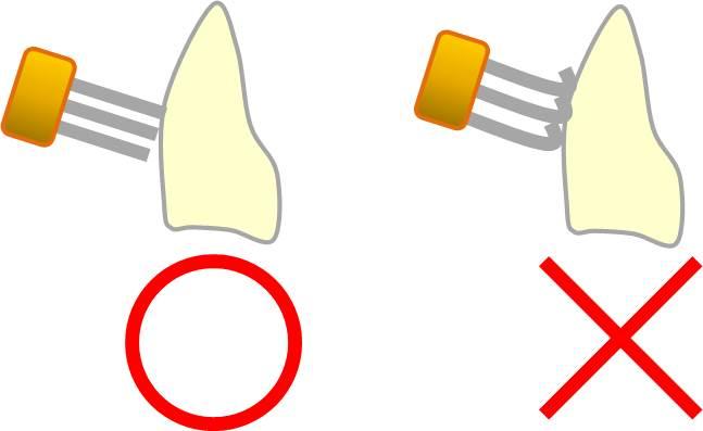 歯科医は絶対選ばない!実は「役に立たない歯ブラシ」の特徴3つ