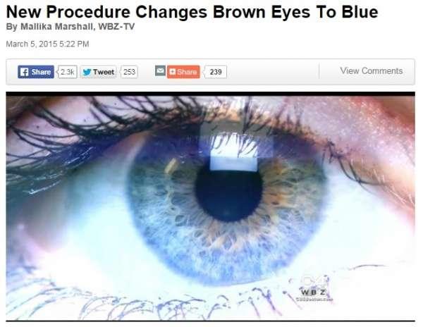レーザーによりブルーの瞳を手に入れる!? 米国でもすでに実験段階。 | Techinsight|海外セレブ、国内エンタメのオンリーワンをお届けするニュースサイト