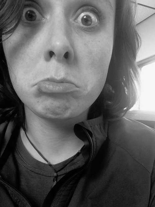 「そばかすだらけの顔が、アラスカに住んだらきれいさっぱり消えた!」女性の比較写真に驚きの声