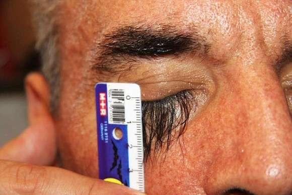 世界仰天ニュース。ある食べ物を食べたところ、まつ毛が異常に長くなってしまった男性(ウクライナ) : カラパイア