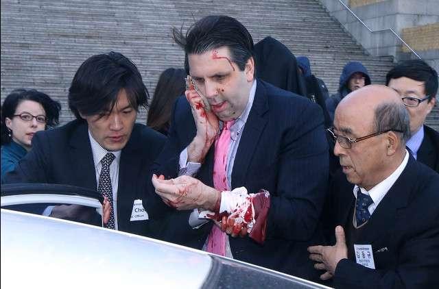 駐韓米大使がソウルで負傷-軍事演習反対叫ぶ男に襲われる  - Bloomberg