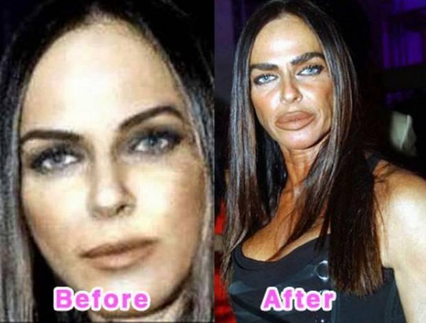 チェコ バービーの恋人のケンを目指し整形手術を43回を受けたモデル