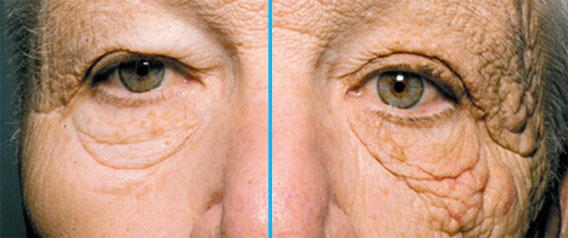 左側だけ太陽光を28年間浴び続けたトラック運転手、顔の左右で老化に大きな差が(米研究) : カラパイア