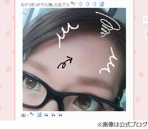 辻希美がおでこ火傷で悲しむ、皮むけ「スッピンだと殴られたみたい」。 | Narinari.com