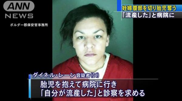 妊婦の腹部を刃物で切り、胎児奪う 34歳女逮捕