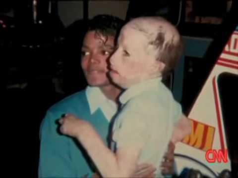 マイケル・ジャクソンと全身火傷の少年 - YouTube
