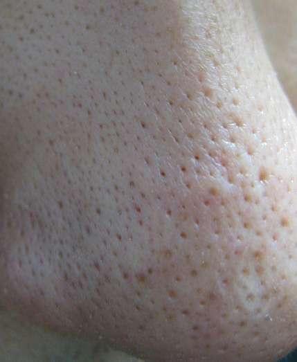 絶望的に肌が汚い人いませんか?