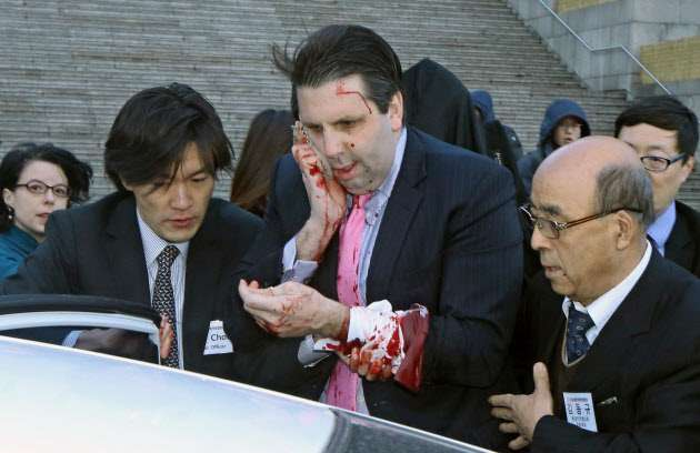【閲覧注意】駐韓米大使がソウルで襲われ負傷