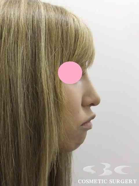 鼻の整形したことある人