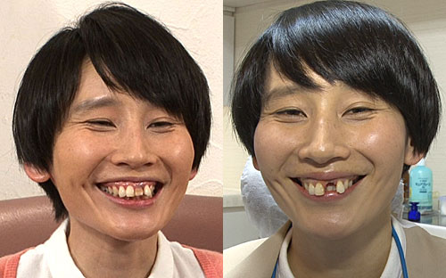 ハリセンボン箕輪はるか 白い前歯にご満悦 堀北真希に「似てきますよね」