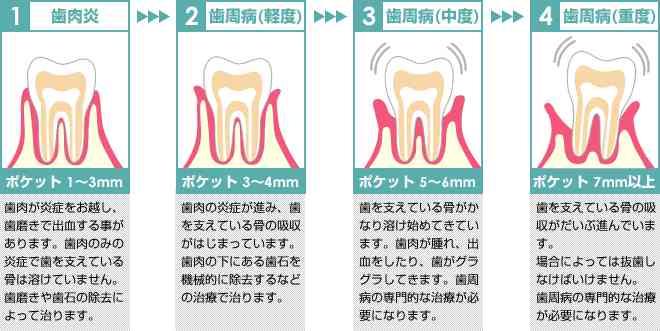 本当に「いい歯医者」を見分ける5つの条件