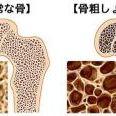 若い頃より身長が3センチ低くなったら…骨粗しょう症に要注意!