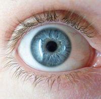目に関する整形のやり過ぎ&失敗例 - NAVER まとめ