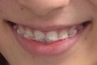 歯列矯正するの抵抗ありますか?