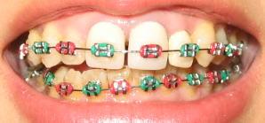 歯の矯正をしてる、してた人!