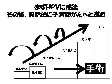 大渕愛子氏 生出演で手術を報告「子宮頸がん未然に防ぐため」 夫婦で激励に感謝