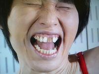 ついにあの人も!歯を矯正した芸人さん達のコメントが秀逸w - NAVER まとめ
