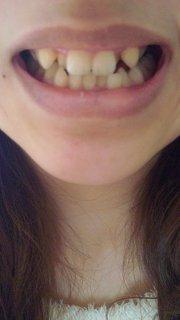 歯のホワイトニングした事ある人いますかー?