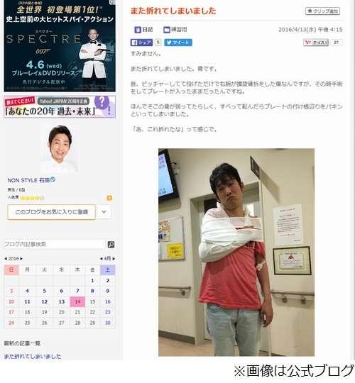 ノンスタイル石田明が右腕骨折、相方・井上裕介「とりあえず1人で頑張る」