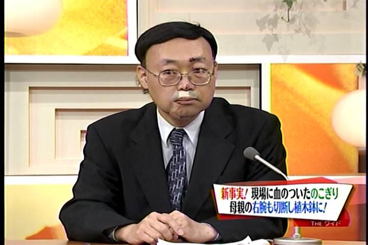 川越達也シェフ:テレビ出演激減の理由は、顔面に16針縫うけが