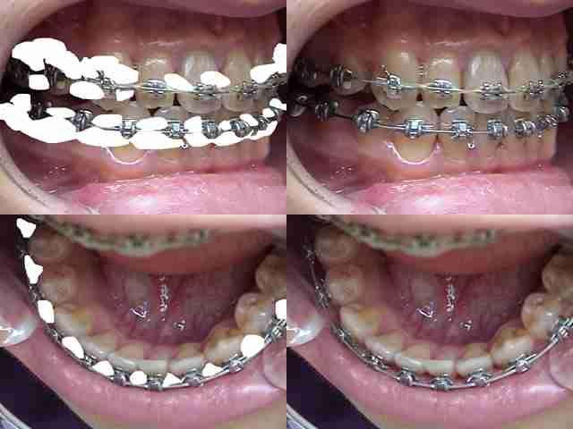 矯正中の歯みがきとそのグッズ