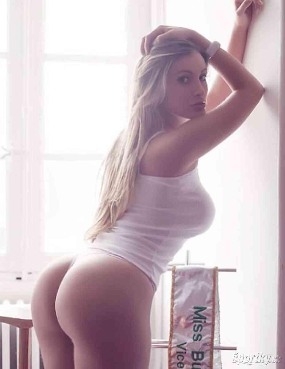 ブラジル 美しいお尻を競うコンテストの準優勝者、整形しすぎて重体に