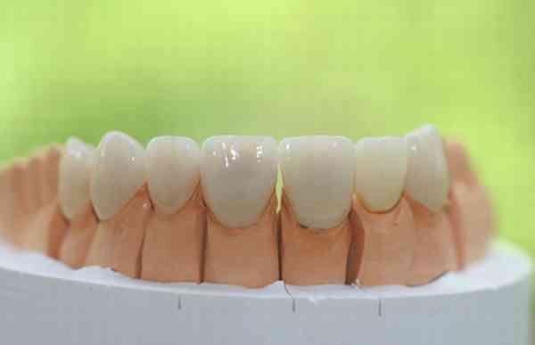 歯の色の不思議 | 審美歯科に行く前に知っておきたい25の事柄